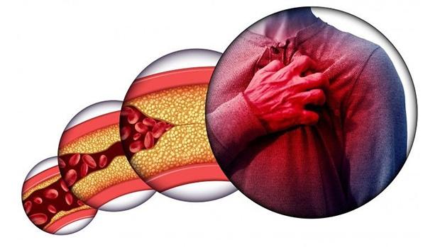 Một số nguyên nhân dẫn đến bệnh máu nhiễm mỡ