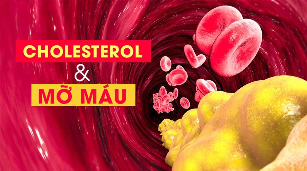 Giải pháp giảm cholesterol và mỡ máu hiệu quả